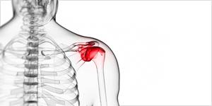 ROUTIER : Douleur persistante épaule, bras, cou,  à partir de  50 ans l'arthrose guette…….
